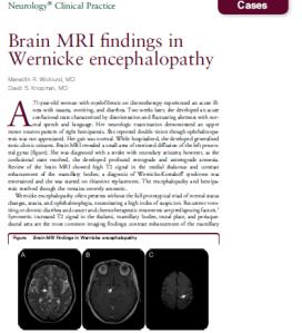 MRI Wernicke