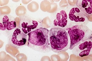 "The term ""left shift"" means that a particular population of cells is ""shifted"" towards more immature precursors (meaning that there are more immature precursors present than you would normally see). Take the neutrophil series, for example. In normal blood, the neutrophils are virtually all mature (segmented). In a left shift, you see mature neutrophils but also immature neutrophils (bands, metamyelocytes, myelocytes, etc.). Check out the photo of a left shift, above: most of the cells are immature. Courtesy: Pathologystudent.com"